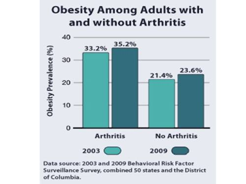 arthritis and obesity